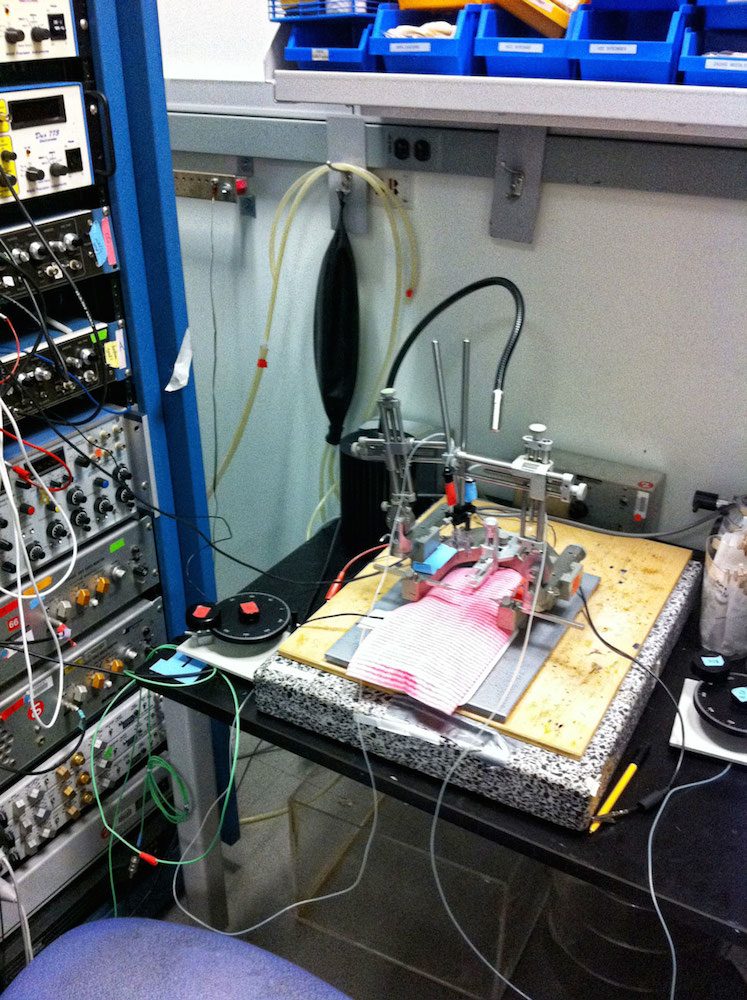 Equipment for surgical research on rats in a laboratory, including a frame for securing the animal during surgery and a rack of devices that record and process brainwave signals, is pictured.